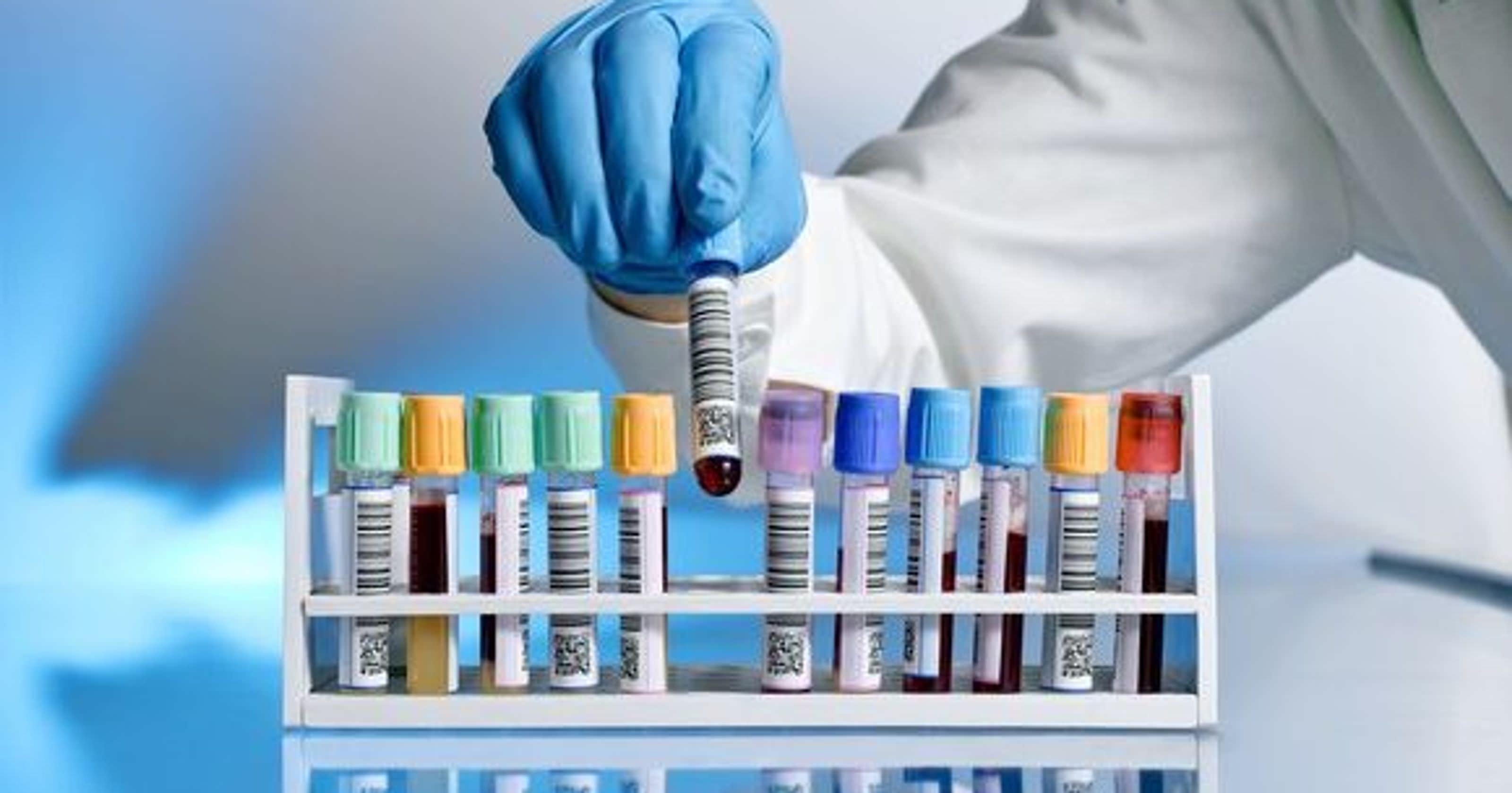 Um exame de sangue pode detectar se o Alzheimer se desenvolverá 16 anos antes de os sintomas aparecerem, diz estudo